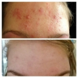 Acne behandeling waddinxveen